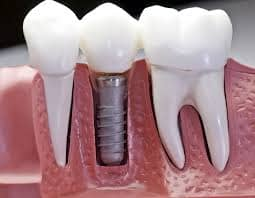 Medical supplies article on dental implants