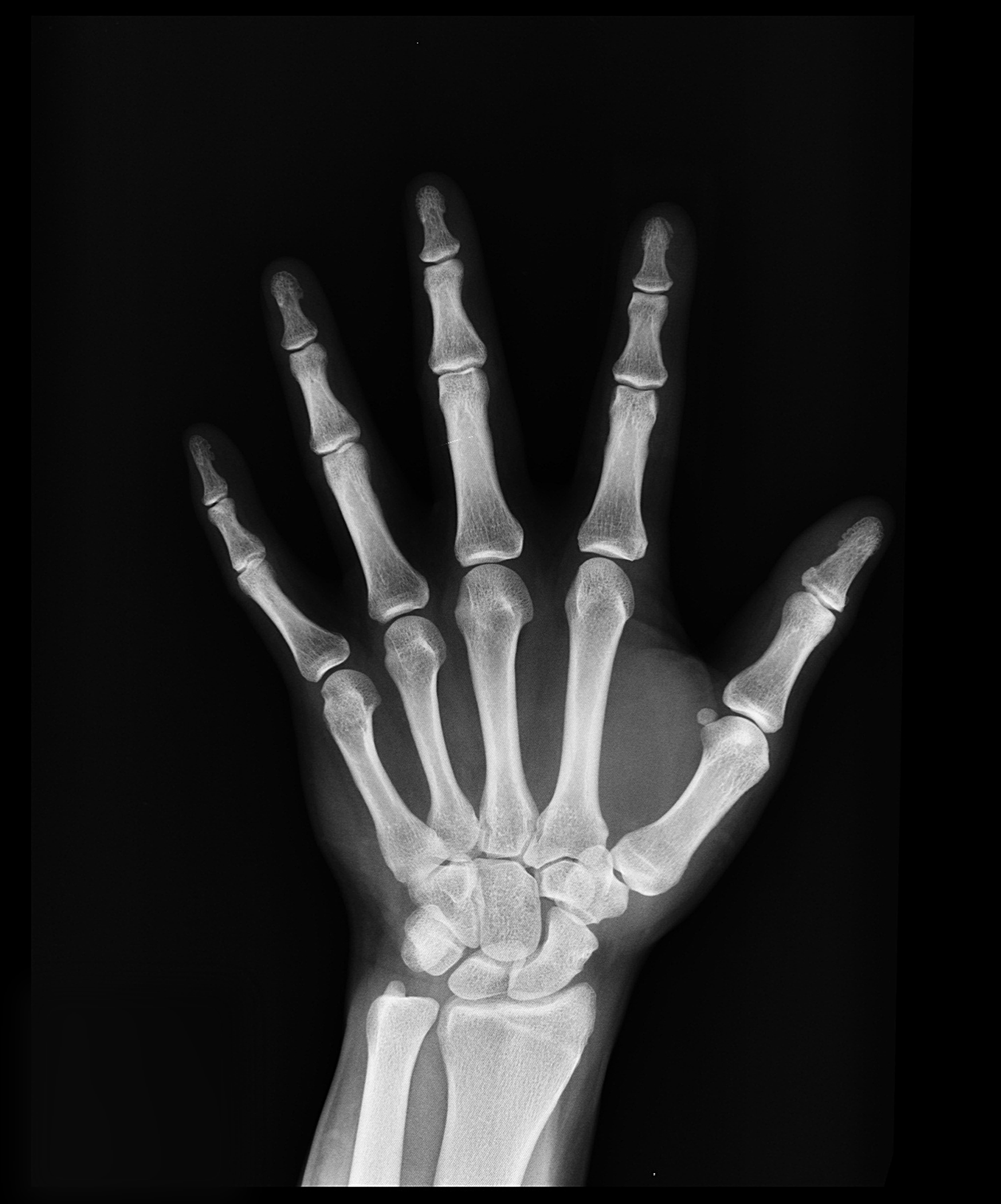 Medical supplies article on hand x-rays