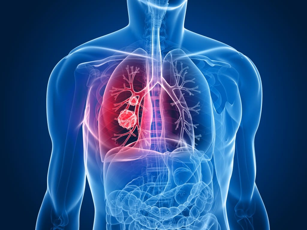 Medical supplies article on mesothelioma