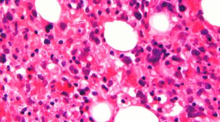 Bone Marrow Biopsy Pain